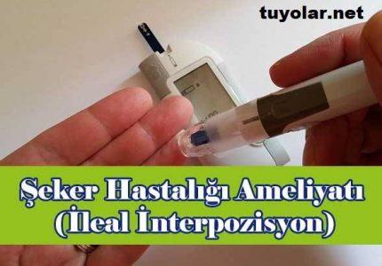 Şeker Hastalığı Ameliyatı (İleal İnterpozisyon)